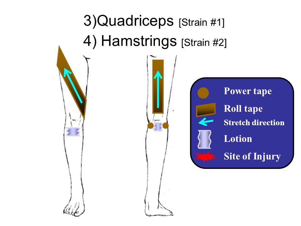 3)Quadriceps [Strain #1]